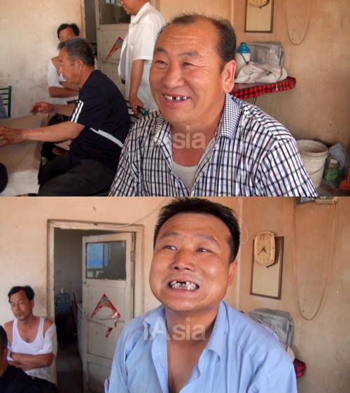 歯が抜けたと訴える打拉亥村の男性(2013年5月23日)