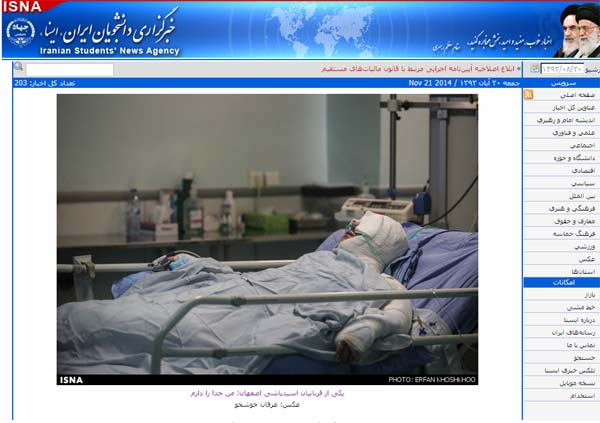 イスファハンの病院で治療を受ける被害者の一人。政府は被害者の治療費を最大限負担すると発表した(ISNA通信ウェブサイト)