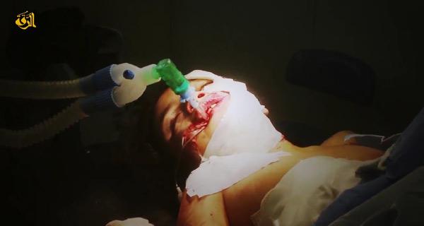 ISは空爆による民間人の犠牲を強調している。とくにシリア政府軍は「たる爆弾」を多用するため、爆撃被害が広範囲に及ぶという。写真は病院に搬送された子ども。シリア・ラッカ県(IS映像)