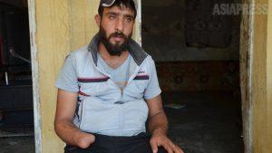 <シリア>窃盗でっち上げ、ISが手首切断「失った右手を見るたび、恐怖の記憶が」(写真12枚)